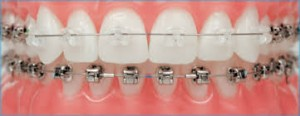 Clear Braces for Teeth : Braces or Invisalign?