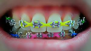 Rubber Bands For Braces Braces Or Invisalign