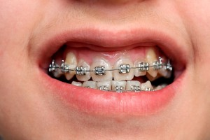 metal braces advantages and disadvantages