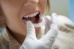 Invisible Braces : Braces Or Invisalign?