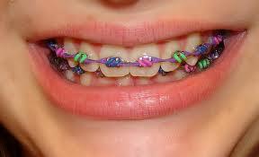 braces color chooser - photo #28